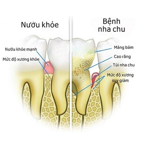 nhakhoanucuoi.com